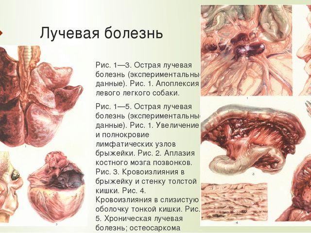 Лучевая болезнь Рис. 1—3. Острая лучевая болезнь (экспериментальные данные)....