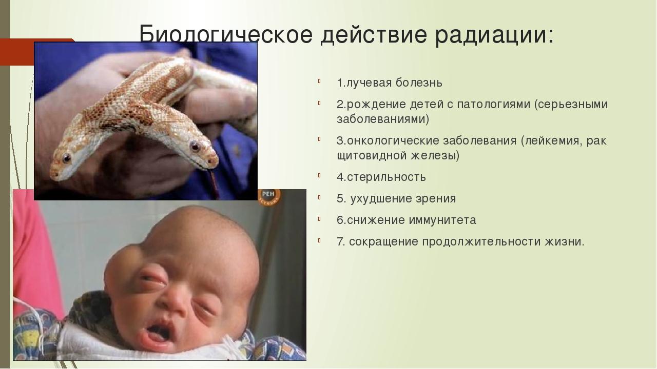 Биологическое действие радиации: 1.лучевая болезнь 2.рождение детей с патолог...