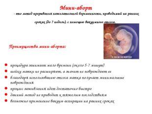 Мини-аборт - это метод прерывания нежелательной беременности, проводимый на р