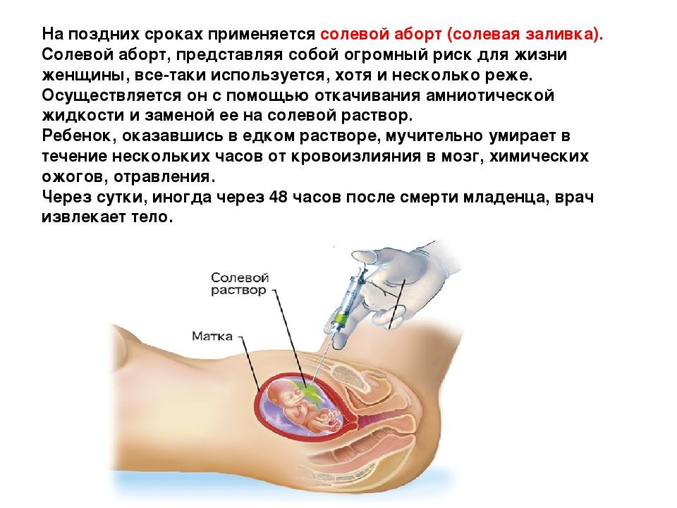 На поздних сроках применяется солевой аборт (солевая заливка). Солевой аборт,...