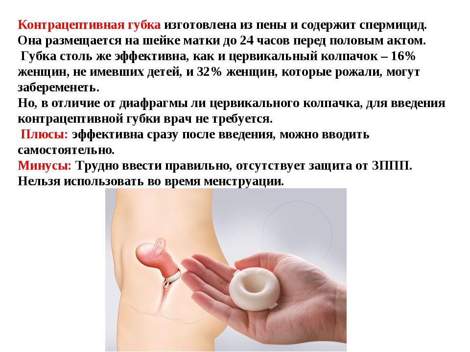 Контрацептивная губка изготовлена из пены и содержит спермицид. Она размещает...