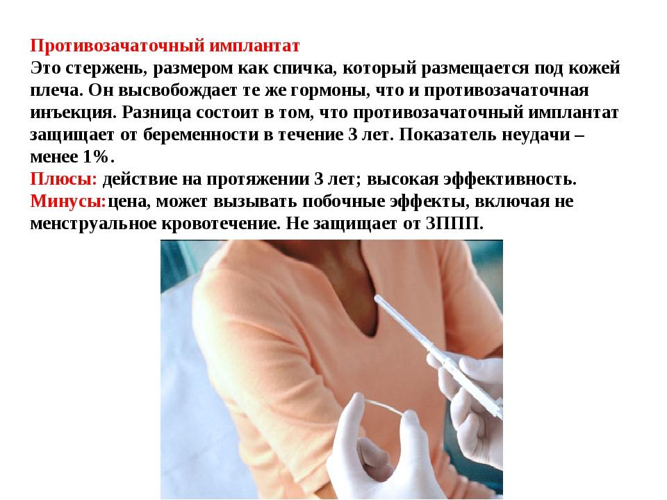 Противозачаточный имплантат  Это стержень, размером как спичка, который разм...