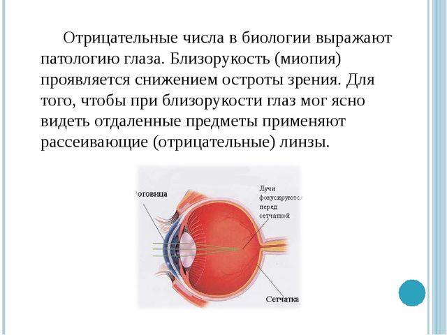 Отрицательные числа в биологии выражают патологию глаза. Близорукость (миопия...