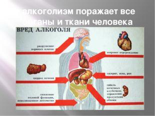 алкоголизм поражает все органы и ткани человека