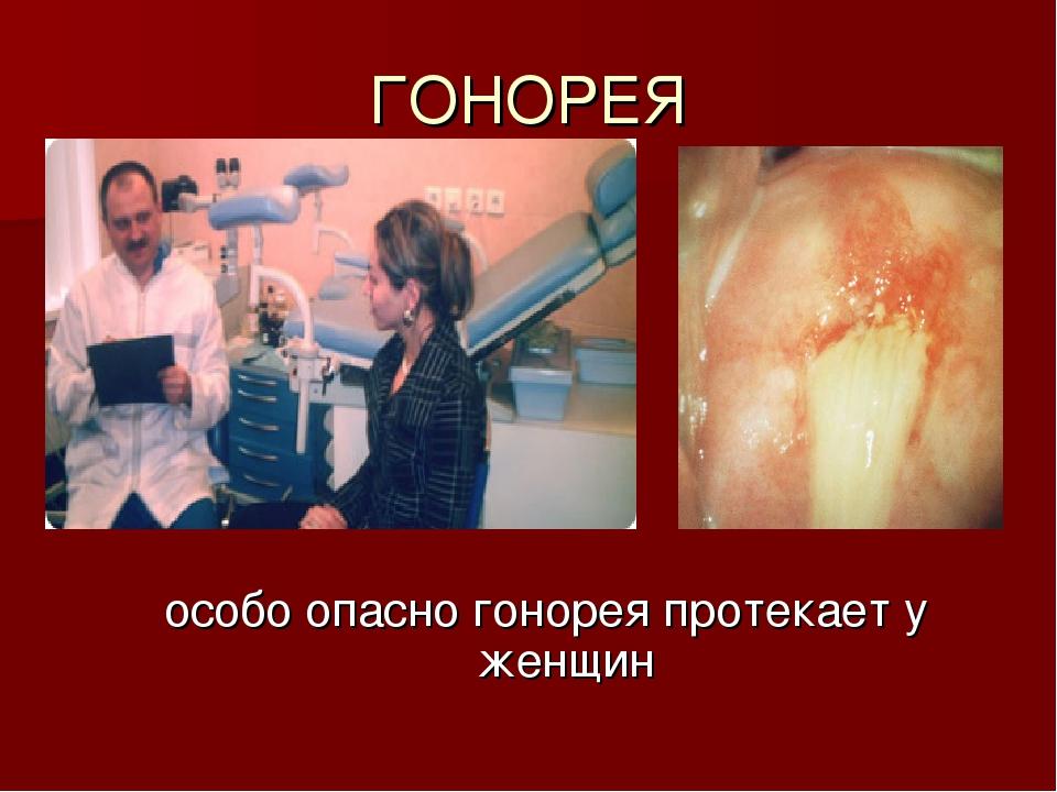 ГОНОРЕЯ особо опасно гонорея протекает у женщин