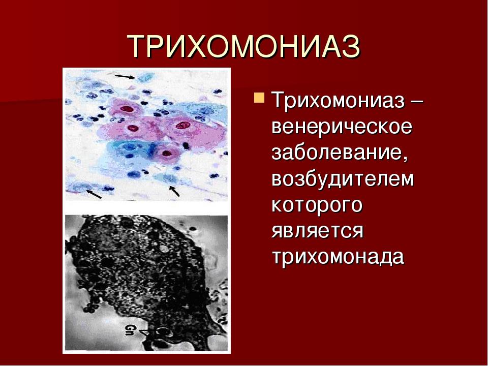 ТРИХОМОНИАЗ Трихомониаз – венерическое заболевание, возбудителем которого явл...