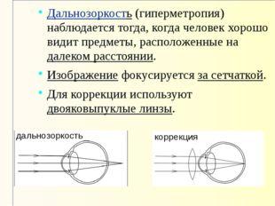 Дальнозоркость (гиперметропия) наблюдается тогда, когда человек хорошо видит
