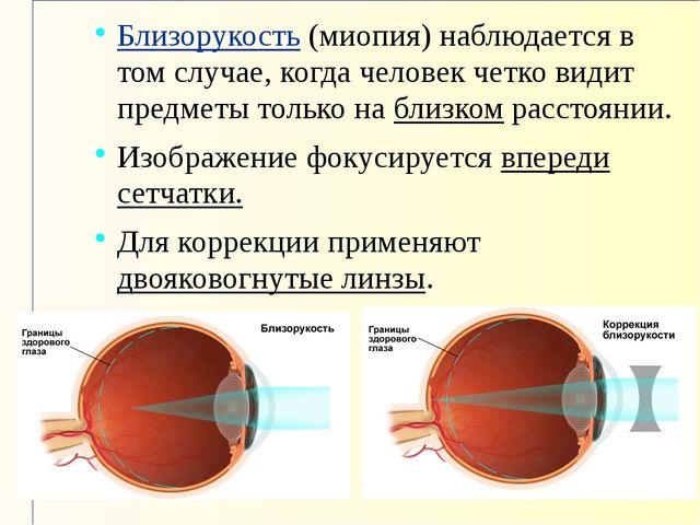Близорукость (миопия) наблюдается в том случае, когда человек четко видит пре...