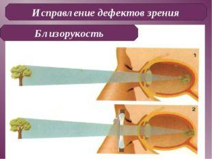 Исправление дефектов зрения Близорукость