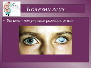 Болезни глаз бельмо - помутнение роговицы глаза;