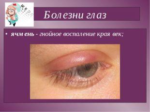Болезни глаз ячмень - гнойное воспаление края век;
