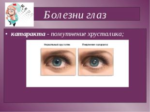 Болезни глаз катаракта - помутнение хрусталика;