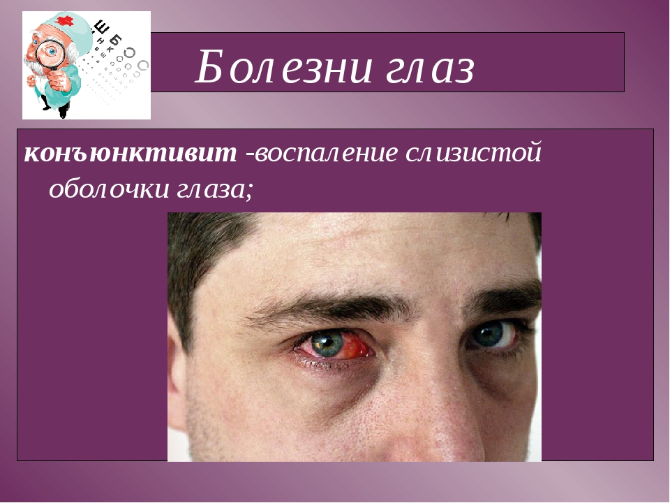 Болезни глаз конъюнктивит -воспаление слизистой оболочки глаза;