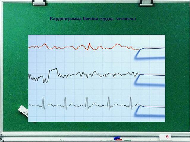 Кардиограмма биения сердца человека