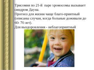 Трисомия по 21-й паре хромосомы вызывает синдром Дауна. Прогноз для жизни чащ