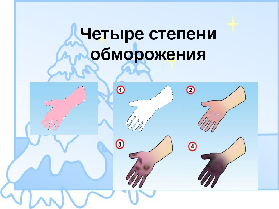 Четыре степени обморожения