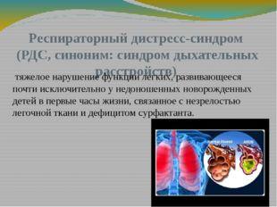 Респираторный дистресс-синдром (РДС, синоним: синдром дыхательных расстройств