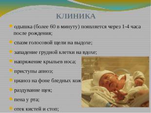 КЛИНИКА одышка (более 60 в минуту) появляется через 1-4 часа после рождения;