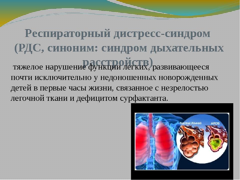 Респираторный дистресс-синдром (РДС, синоним: синдром дыхательных расстройств...