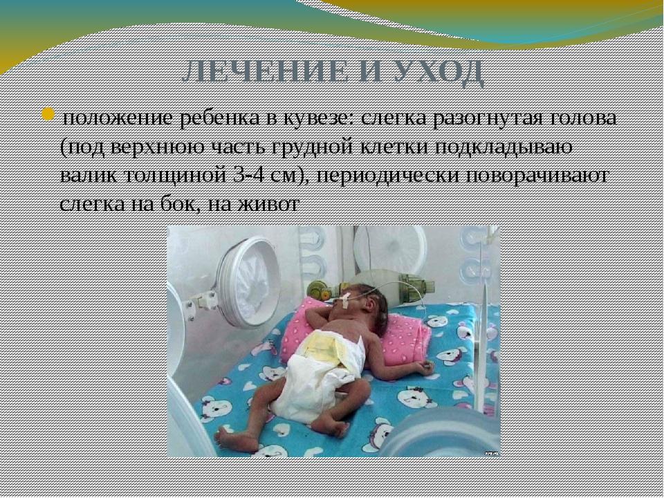 ЛЕЧЕНИЕ И УХОД положение ребенка в кувезе: слегка разогнутая голова (под верх...