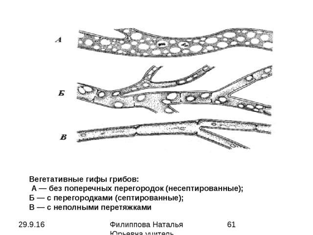 Вегетативные гифы грибов: А — без поперечных перегородок (несептированные); Б...