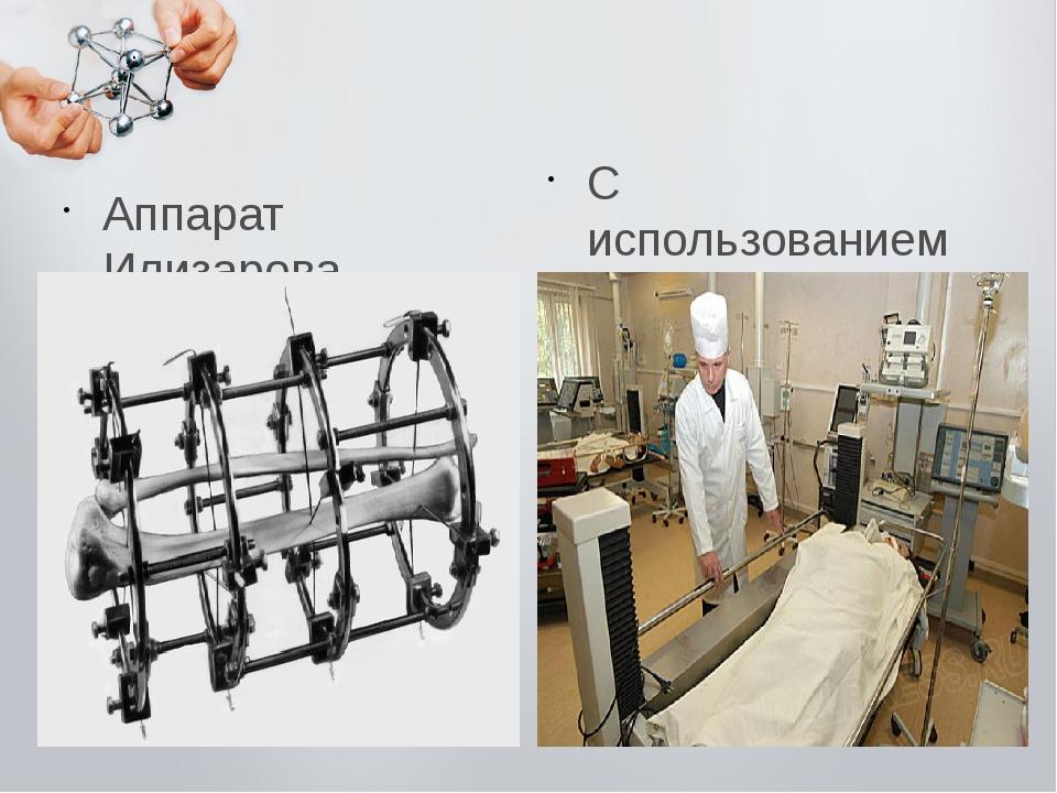 Аппарат Илизарова С использованием нанотехнологий