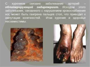 С курением связано заболевание артерий – облитерирующий эндартериит. Исходом