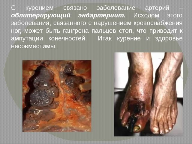 С курением связано заболевание артерий – облитерирующий эндартериит. Исходом...