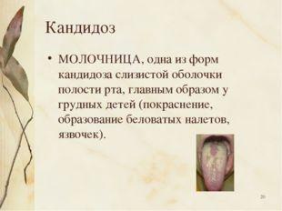 * Кандидоз МОЛОЧНИЦА, одна из форм кандидоза слизистой оболочки полости рта,