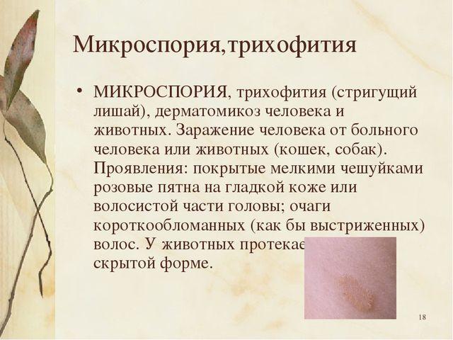 * Микроспория,трихофития МИКРОСПОРИЯ, трихофития (стригущий лишай), дерматоми...