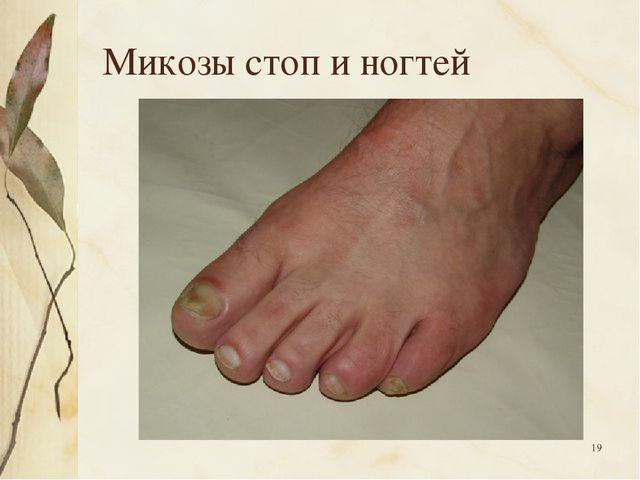 * Микозы стоп и ногтей