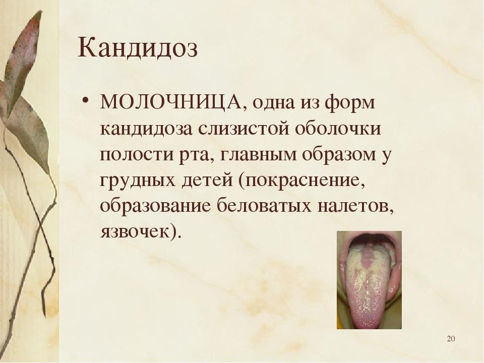 * Кандидоз МОЛОЧНИЦА, одна из форм кандидоза слизистой оболочки полости рта,...