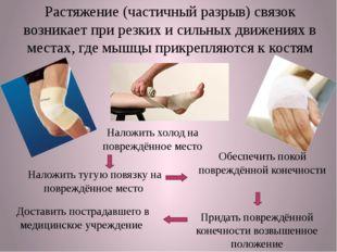 Растяжение (частичный разрыв) связок возникает при резких и сильных движениях