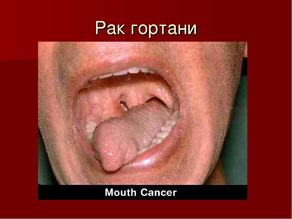 Как выглядит горло у курильщика