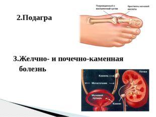 2.Подагра 3.Желчно- и почечно-каменная болезнь