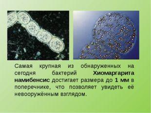 Самая крупная из обнаруженных на сегодня бактерий Хиомаргарита намибенсис дос