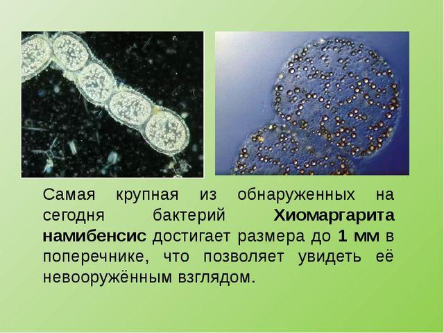 Самая крупная из обнаруженных на сегодня бактерий Хиомаргарита намибенсис дос...