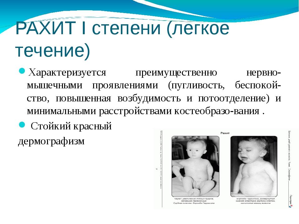 РАХИТ I степени (легкое течение) Характеризуется преимущественно нервно-мышеч...