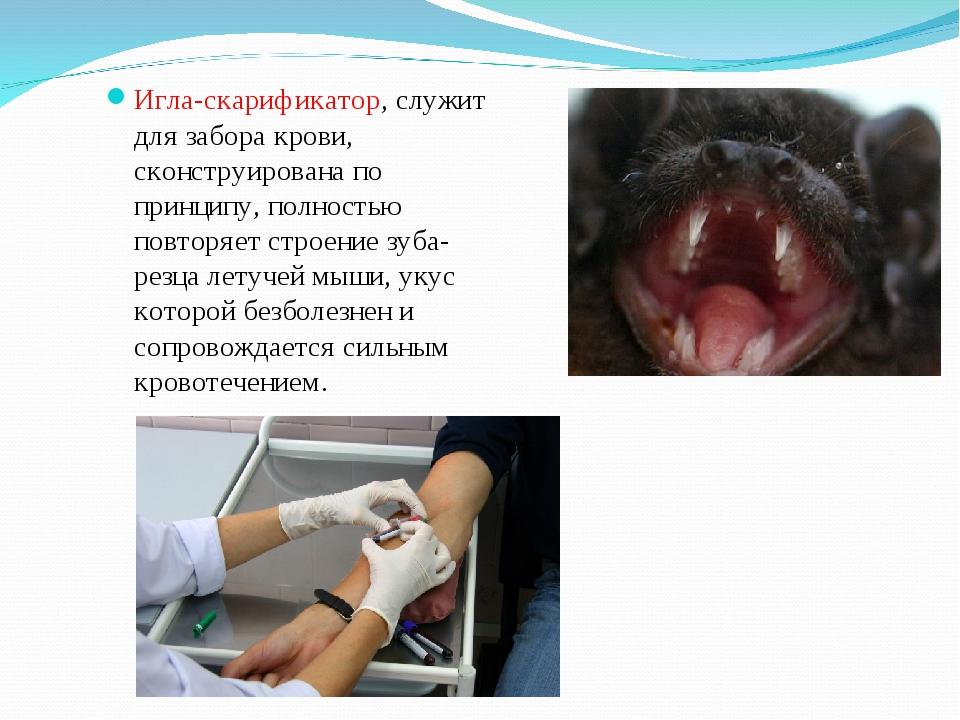 Игла-скарификатор, служит для забора крови, сконструирована по принципу, полн...