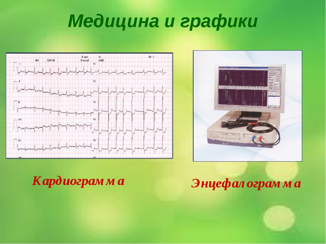 Медицина и графики Кардиограмма Энцефалограмма Лечением людей с сердечнососуд...