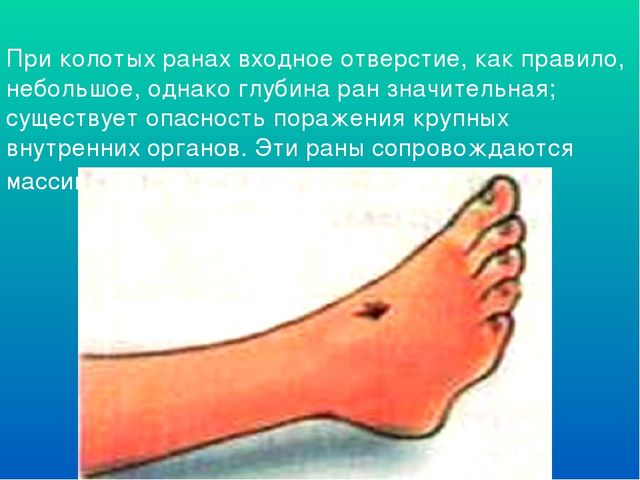 При колотых ранах входное отверстие, как правило, небольшое, однако глубина р...