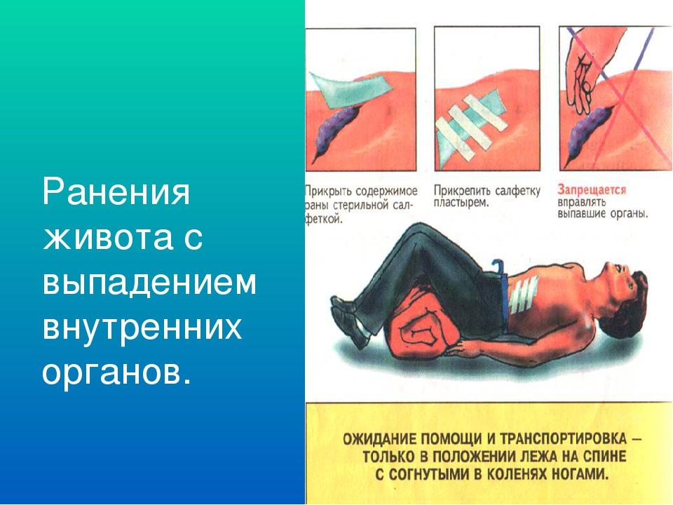 Ранения живота с выпадением внутренних органов. Повреждения поверхностных сло...