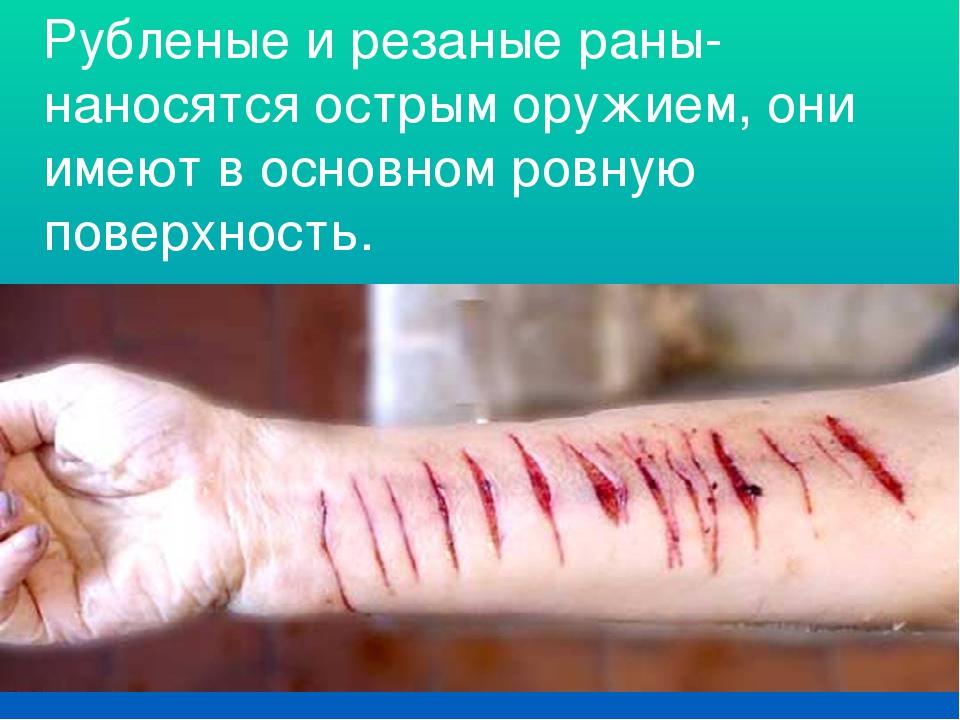 Рубленые и резаные раны- наносятся острым оружием, они имеют в основном ровну...