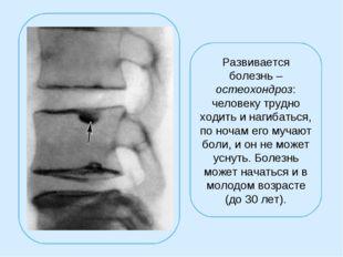 Развивается болезнь – остеохондроз: человеку трудно ходить и нагибаться, по н