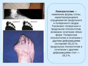 Плоскосто́пие— изменение формы стопы, характеризующееся опущением её продоль