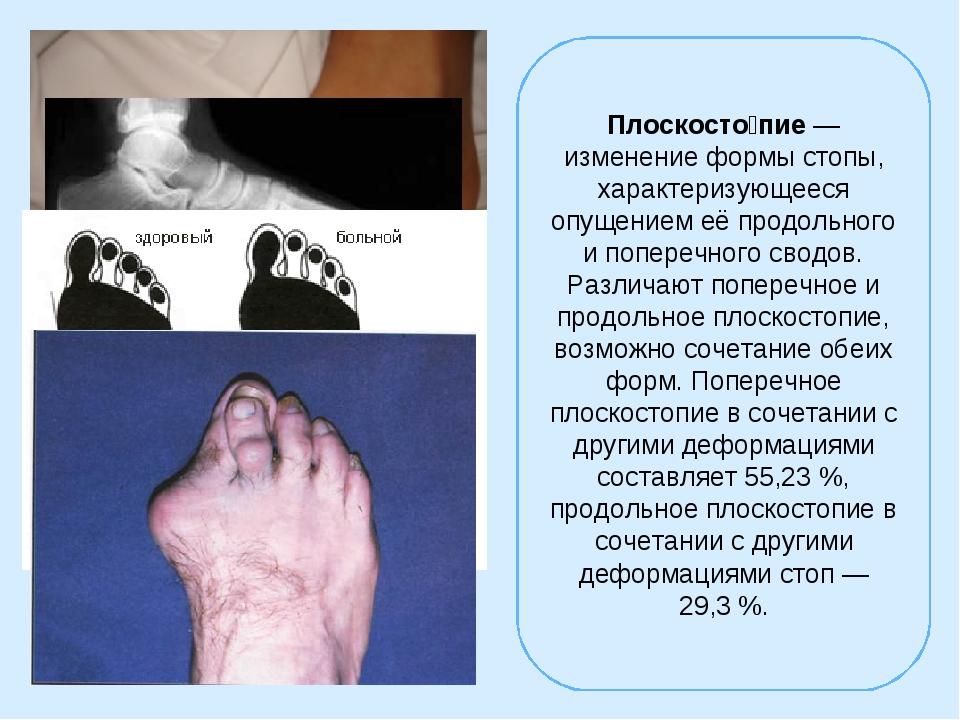 Плоскосто́пие— изменение формы стопы, характеризующееся опущением её продоль...