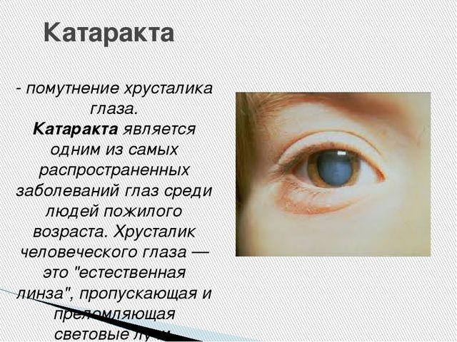 Катаракта - помутнение хрусталика глаза. Катарактаявляется одним из самых ра...