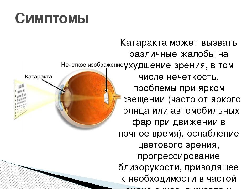 Катаракта может вызвать различные жалобы на ухудшение зрения, в том числе неч...