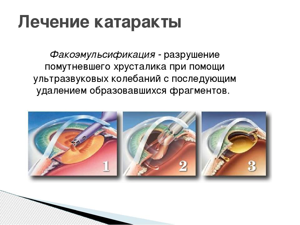 Лечение катаракты Факоэмульсификация - разрушение помутневшего хрусталика при...