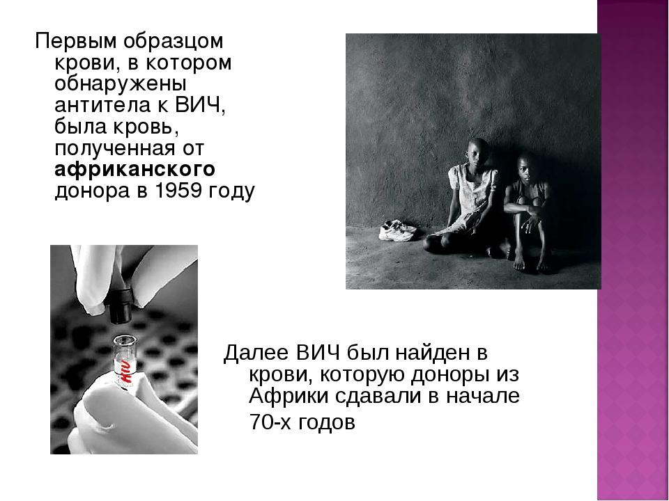 Первым образцом крови, в котором обнаружены антитела к ВИЧ, была кровь, получ...